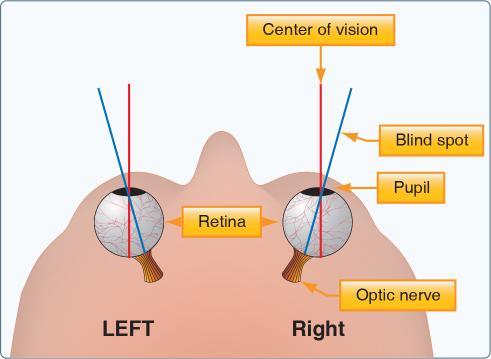 Human factors the blind spot learn to fly blog asa aviation the figure below provides a dramatic example of the eyes blind spot ccuart Images